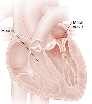Cross section of heart showing mitral valve stenosis.