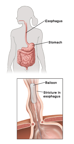 Outline of human figure showing digestive system. Inset shows balloon widening stricture in esophagus.