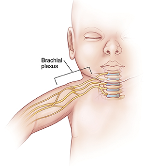 Front view of infant showing cervical spine and brachial plexus.